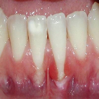 Example 2 before gum treatment