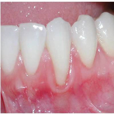 Example 4 before gum treatment