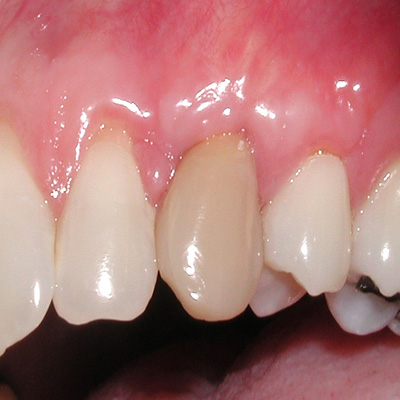Example 1 after gum treatment