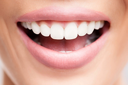 How Can We Tell When Gums Require Grafts?