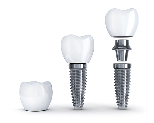 Dental Implant FAQ at Implant and Periodontal Wellness Center of Arizona