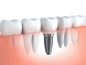 Computer generated model of dental implant from Implant and Periodontal Wellness Center of Arizona