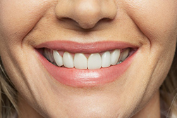 a smiling patient with a gingivectomy from Implant and Periodontal Wellness Center of Arizona